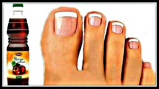 ОПУСТИТЕ ноги в ЯБЛОЧНЫЙ уксус и ЗАБУДЬТЕ о грибке ногтей! ПРОВЕРЕНО!