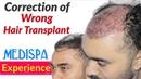 Bad Hair Transplant REPAIR at MEDISPA JAIPUR by Dr Suneet INDIA DELHI USA