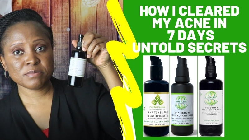 HOW I CLEARED MY ACNE Naturally In 7 Days 3 Untold Clear Skin Secrets By Cosmetic Chemist