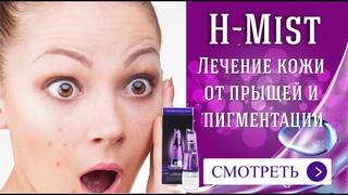 Лечение кожи от прыщей и пигментации. Это нужно иметь каждой женщине. Узнайте об H-Mist