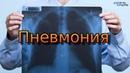 ВОСПАЛЕНИЕ ЛЁГКИХ / PNEUMONIA