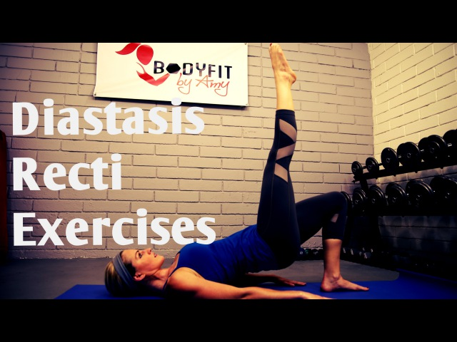 Diastasis Recti Exercises (упражнение при диастазе) Safe Exercises for Ab Separation After Pregnancy