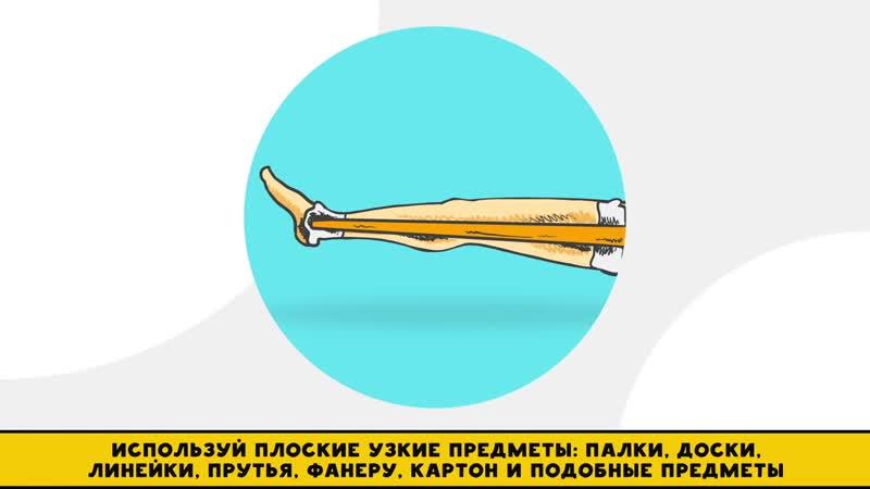 Помощь при травмах ног Как накладыванию шины на травмированую ногу