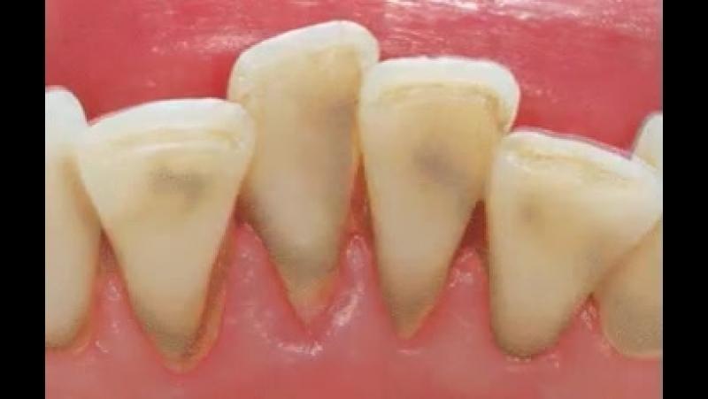 Фотошоп Ні...) Це професійна гігієна порожнини рота зняття каменя ультразвуком.