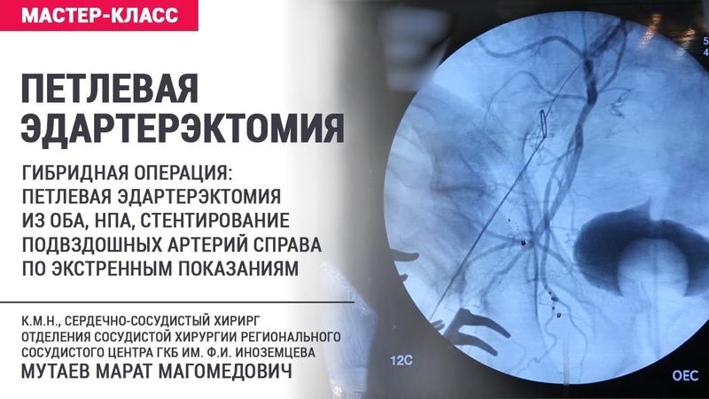 Петлевая эндартерэктомия