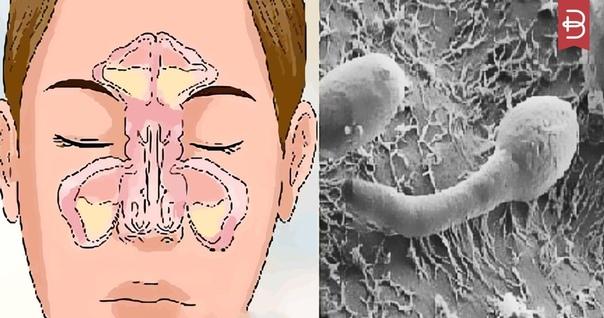 Это важно. Проблема заложенности вашего носа в вашем...