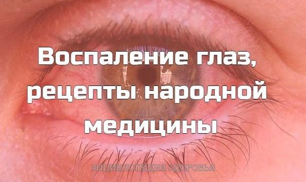 Воспаление глаз, рецепты народной медицины
